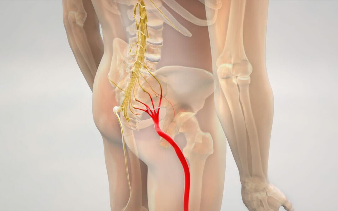 Sciatica – 3 Exercises to reduce pain