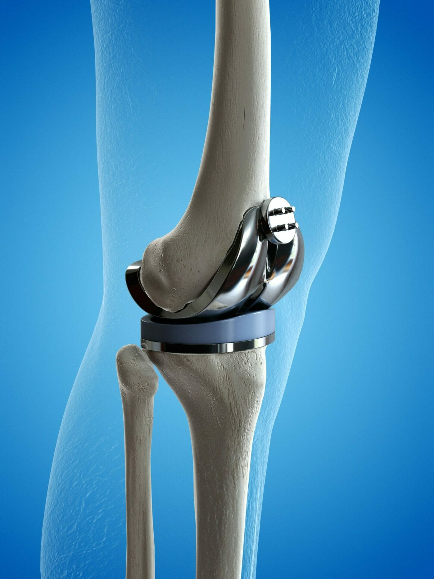 What exercises should I do immediately after my Knee Replacement?