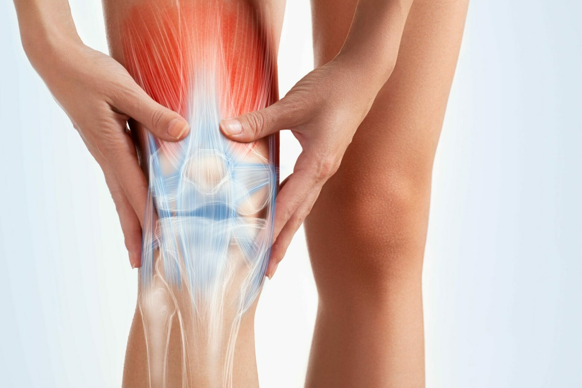 Can physio help with osteoarthritis of the knee?